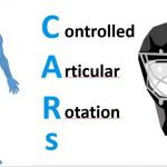 Controlled Articular Rotations – C.A.Rs